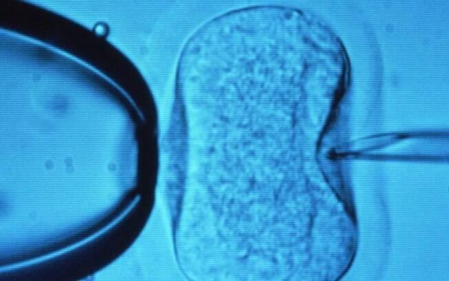 Equipe em Atenas diz ter coletado óvulos de pacientes após terapia