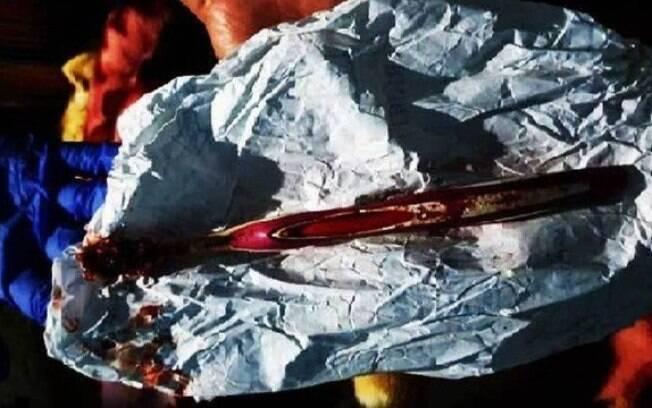 Escova de dentes foi retirada do estômago de paciente na Índia.