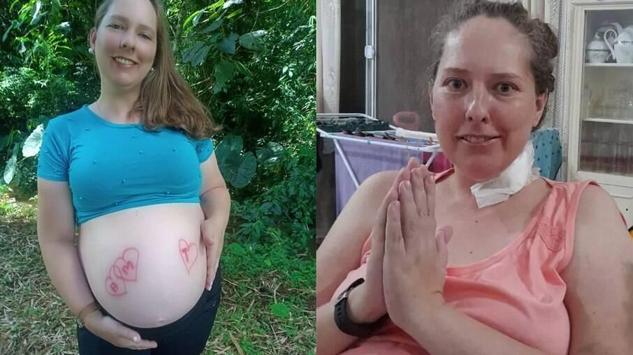 Caroline Gotardo durante a gravidez os trigêmeos e após alta hospitalar