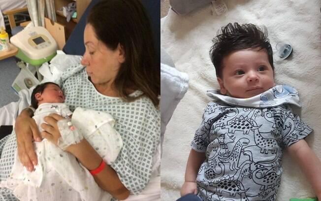 O bebê cabeludo, Oscar, precisou cortar as madeixas aos dois meses de vida; a família o apelidou de Mogli, o menino lobo