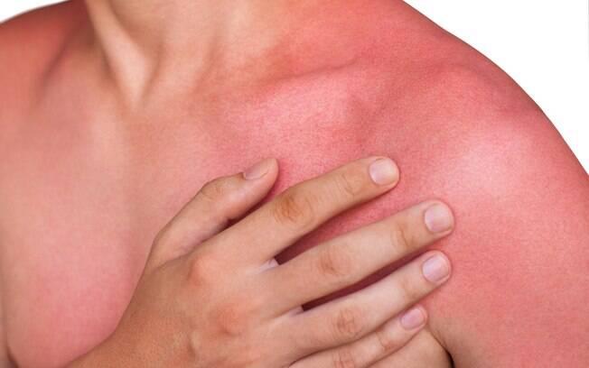 envenenamento solar