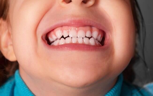 O bruxismo infantil pode ter causas genéticas ou psicológicas