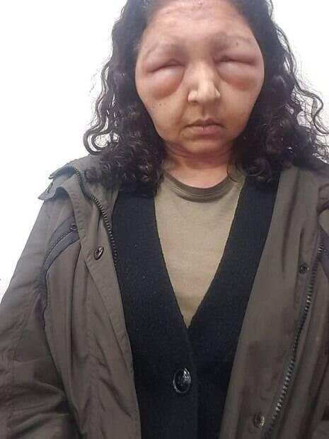 Rosto de mulher está inchado e olhos quase fechados por conta da reação alérgica ao uso da henna