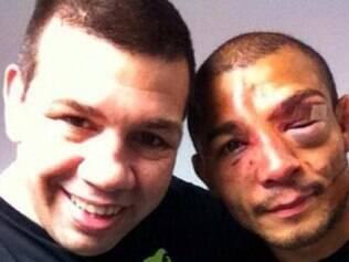 Durante a luta com Chad Mendes, José Aldo levou vários cutucões e socos no olho esquerdo