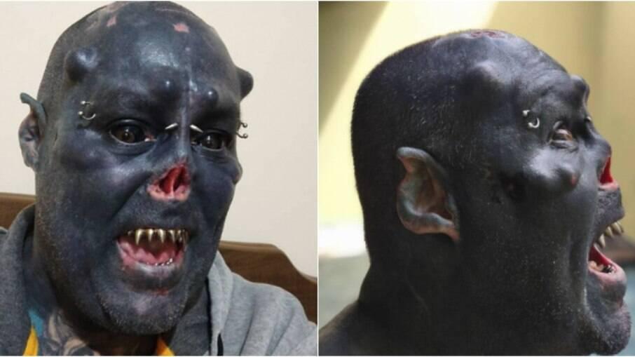 Tatuador mutilou o nariz para ganhar visual de