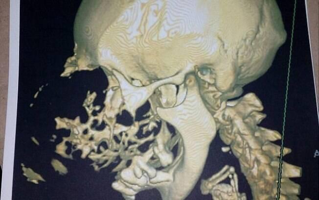 Ao realizar exames de imagem, foi possível constatar que diversos ossos da face da idosa foram quebrados com o crescimento do tumor