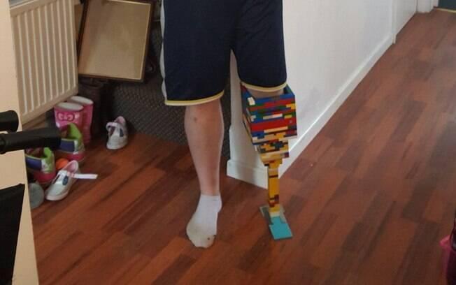 Foto de Cronin com a prótese de Lego foi compartilhada na rede social Reddit, chamando atenção de milhares de pessoas