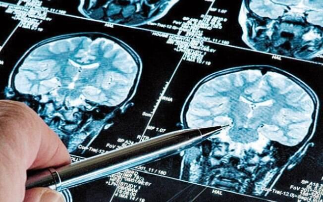 Pesquisadores encontram relação entre gengivite e Alzheimer
