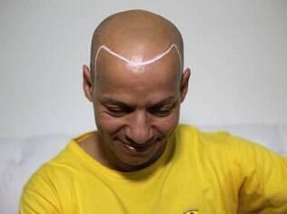 Edvaldo Zumba antes de fazer o procedimento