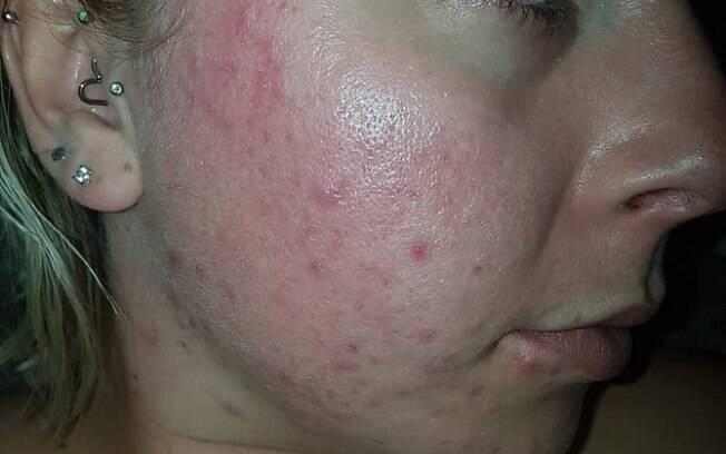 A britânica Emily McClarron que sofre de acne severa encontrou solução na