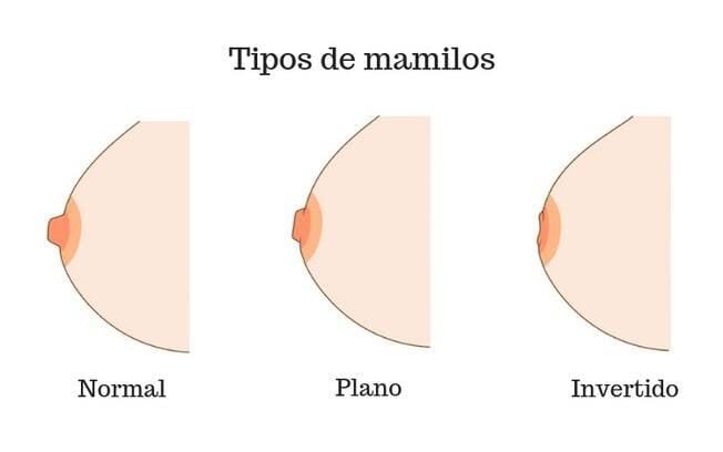 Os tipos de mamilos podem ser classificados em 'normais', 'planos' e 'invertidos', mas a diferença é apenas estética
