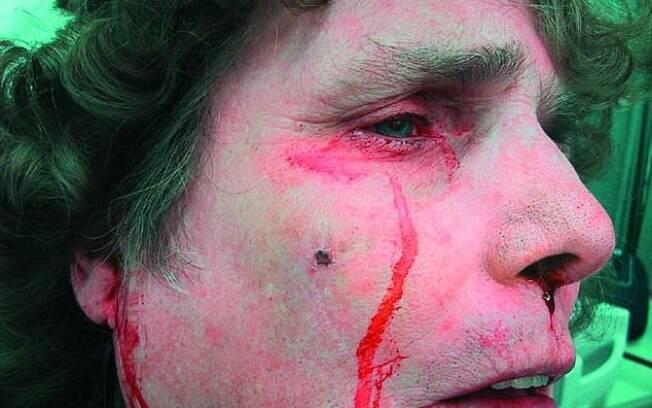 Ao chorar sangue, a mulher afirmou aos médicos, em 2003, que havia beliscado o nariz antes, ocasionando a lesão