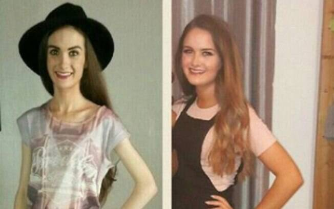 Por causa da anorexia, Michaela Duddy chegou a pesar cerca 30 quilos e tentava comer o mínimo que conseguia
