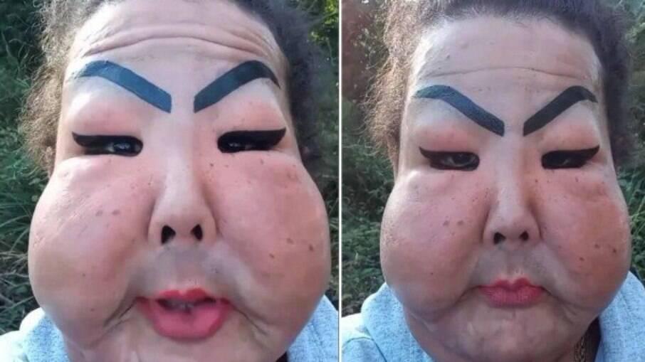 Juju expôs que sofre bullying por produto inserido no rosto