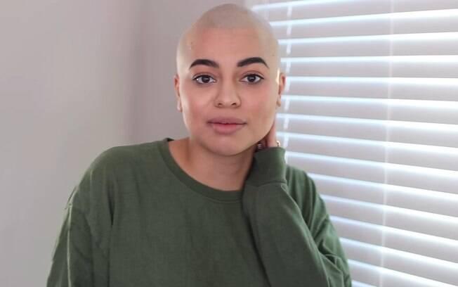 Vanessa Martinez raspou os cabelos depois que o uso de extensões deixou pontos calvos em seu couro cabeludo