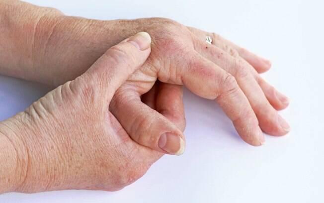 Artrose é o tipo de reumatismo mais comum, representando cerca de 30% a 40% das consultas em ambulatórios de reumatologia