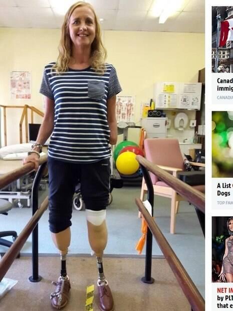mulher em sala de fisioterapia exige próteses de pernas mecânicas