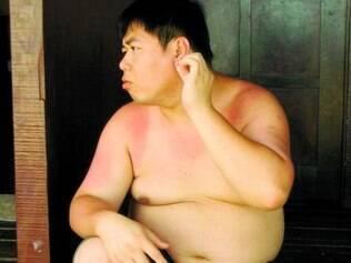 Risco. Estudo faz alerta sobre riscos à saúde causados por sobrepeso e obesidade