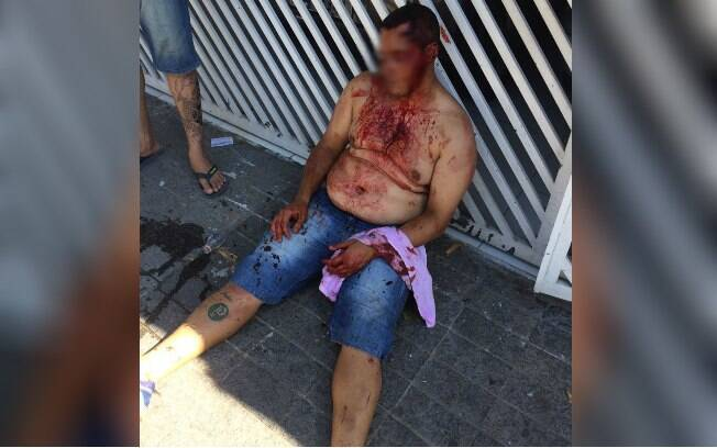 Torcedor palmeirense ferido durante confronto com corintianos na rua Turiassu, na zona oeste de São Paulo