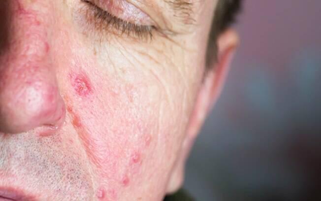 Um dos sintomas da escabiose, quando contraída por seres humanos, são bolas vermelhas pelo corpo.