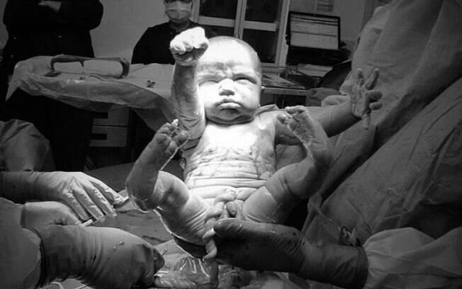 Foto de parto capturou momento exato em que bebê faz pose de super-herói no momento seguinte em que veio ao mundo