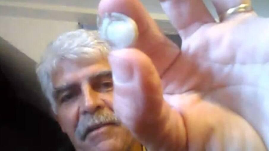 Homem mostra o dedo decepado