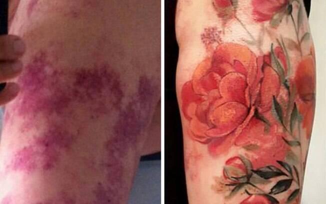 Flores, muitas flores nascem de manchas na pele!