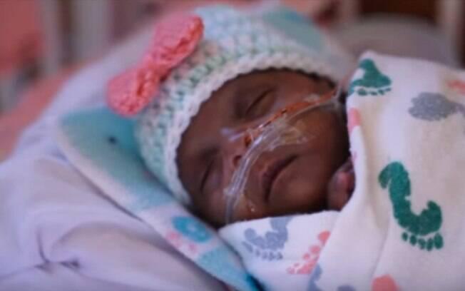 Saybie nasceu em dezembro, quando a mãe estava com apenas 23 semanas de gestação, e ficou internada por 5 meses