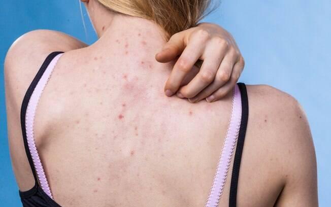A acne nas costas e em outras partes do corpo surgem pelo mesmo motivo das espinhas no rosto: alta oleosidade da pele
