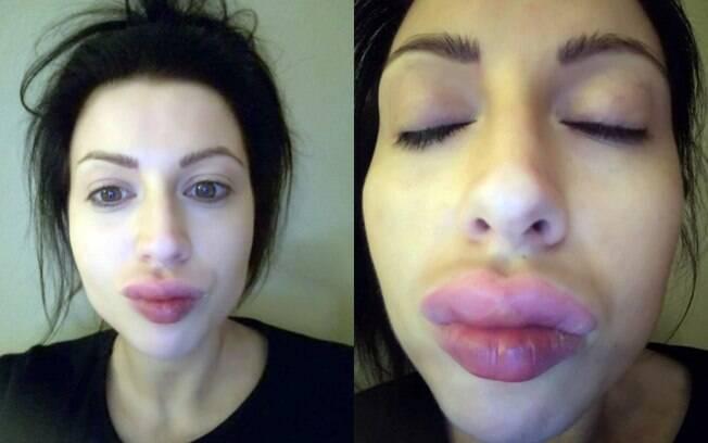Mulher mostra resultado bem longe do esperado após fazer procedimento para ter a boca da Kim Kardashian