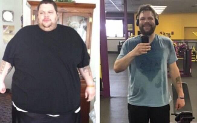 Antes e depois de Roonie