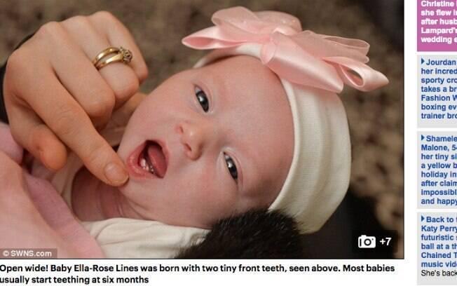 Bebê nasce com dois dentes na Inglaterra e choca familiares e médicos