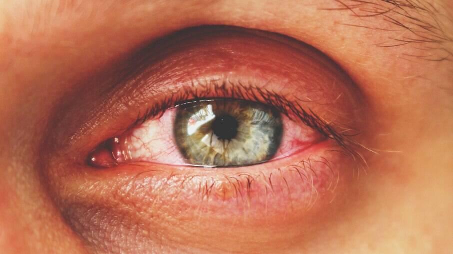 Médicos apontam aumento da miopia durante a pandemia de Covid-19