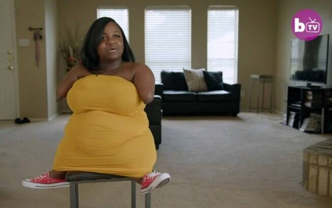 Chassidy Young, de Dallas, nos Estados Unidos, nasceu com uma condição rara e fala sobre aceitação do corpo