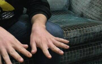 Refugiado no Brasil teve unhas arrancadas em tortura na Síria