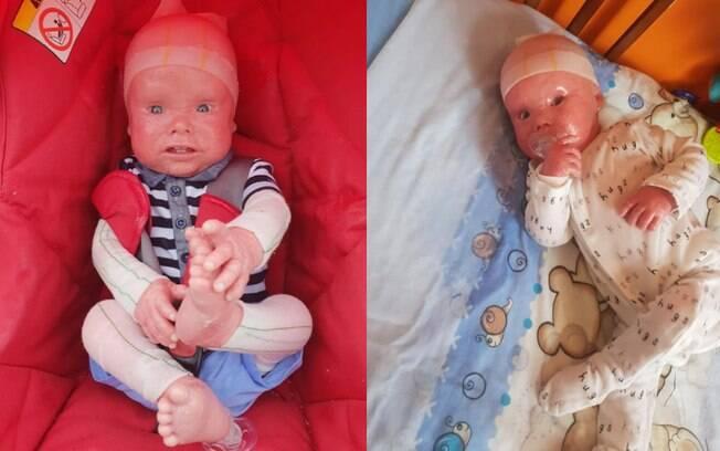 bebê com ictiose arlequim