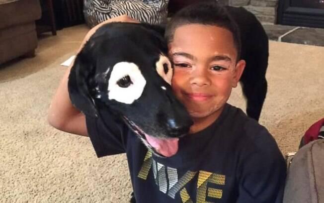 Carter e Rowdy têm muito mais do que só o vitiligo em comum: são muito fofos e amáveis