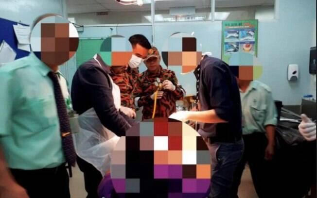 Malásio fica com anel peniano preso na genitália, juntamente de uma tesoura que estava emperrada na lateral do apetrecho