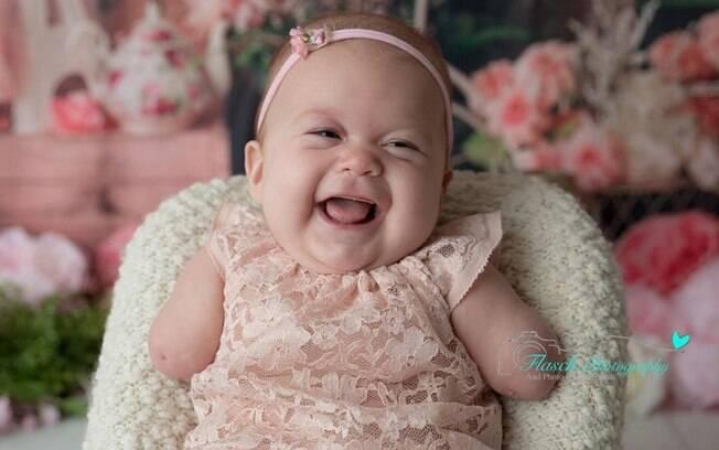 Mãe recusou sugestão de médico de abortar filha sem braços; hoje a pequena tem três meses e é saudável
