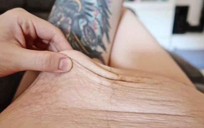A mãe espanhola conta em seu post que sua barriga pós-parto fica parecendo