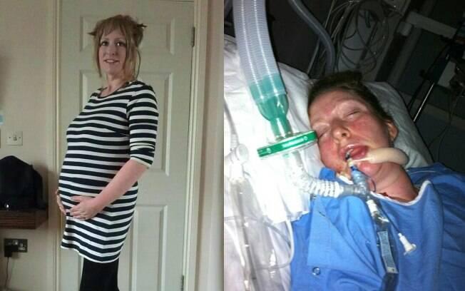 Lucinda precisou ficar internada durante três meses após a hemorragia cerebral, mas conseguiu se recuperar