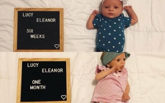 Comparação de Lucy, antes de depois de realizar o procedimento na boca que a impedia de mamar