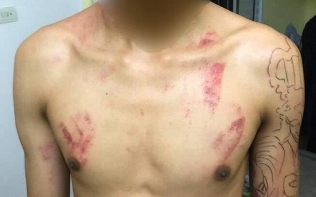 O adolescente teve ferimentos na cabeça, pescoço, peito, costas e braços.