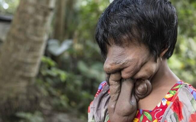 Khadija Khatoon perdeu suas feições por causa do crescimento excessivo da pele do rosto