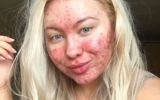 Desde que passou a aceitar a pele sem maquiagem, Abigail decidiu criar uma conta no Instagram para compartilhar sua rotina