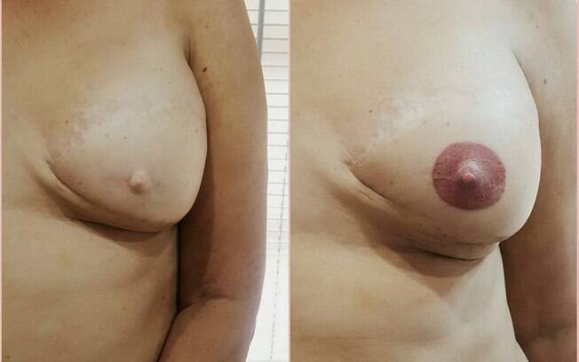 Tati desenha aréolas nas mulheres que passaram pela mastectomia