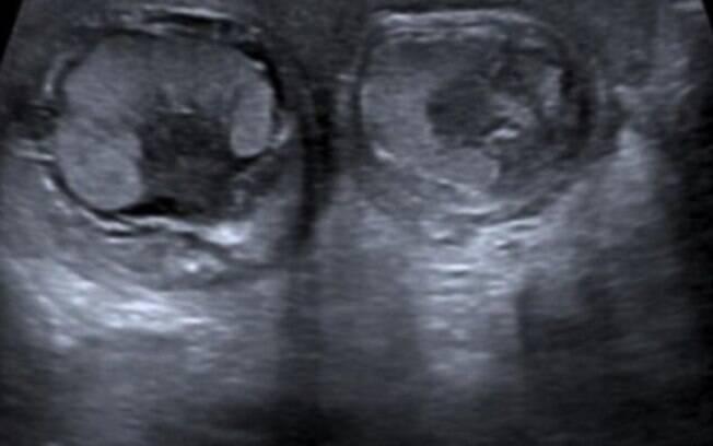 O bebê, que torceu seus testículos dentro do útero, não poderá ter filhos biológicos por causa da condição
