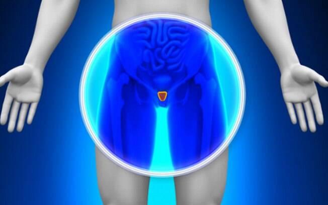 Câncer de próstata é o mais comum em homens
