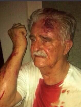 Ítalo Paschoalini, 81, foi agredido por universitário em frente a sua casa