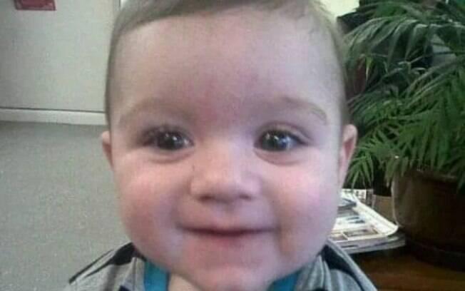 Criança de apenas 10 meses estava ao lado da mãe quando televisão caiu em cima do seu corpo.